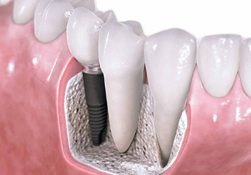 Dental-Implants357w